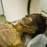 The Curse of the Egyptian Mummy: Coronary Artery Disease?