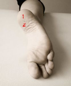 fascitis plantar osteon fasciosis diagnostico