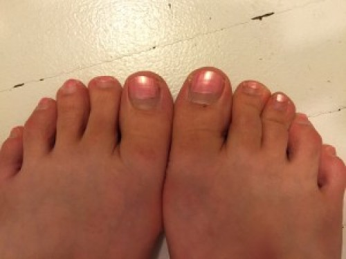 My half grown out pedicure
