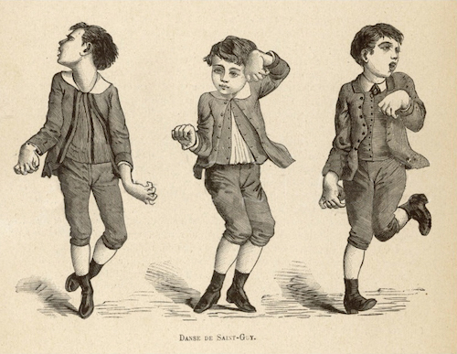 Danse de Saint Guy, or Saint Vitus Dance