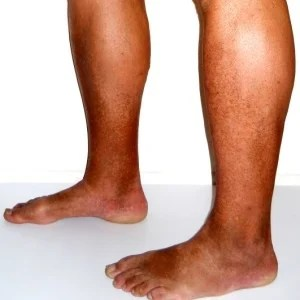 Operation better than exercise for poor leg circulation   Health24 leg vein health