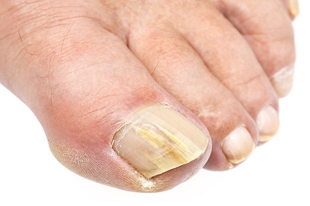 Fungal nail infection treatment options     how to get rid of it fast     FUNGAL NAIL INFECTION