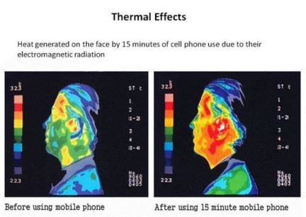Image result for cell phone radiation