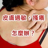 皮膚過敏症狀、皮膚癢怎麼辦2