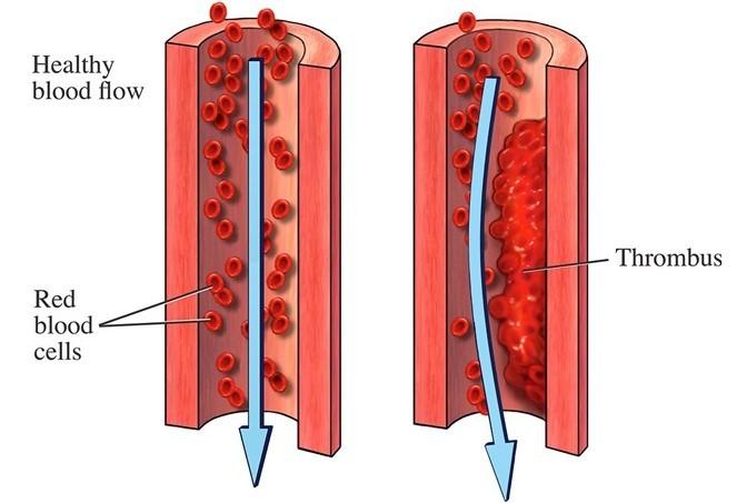 血管堵塞 暢通食療法-1