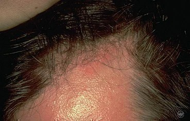 Anyone Can Develop Seborrheic Dermatitis Babies Are Particularly E To The Condition Although In Such Cases It Is More Commonly Known As Cradle Cap