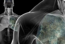 Imunoterapi, Cara Lain Obati Kanker | Tempo Teknologi