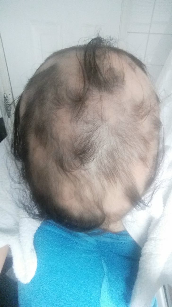 They are from a SWNS story about 22-year-old Ashleigh Alqotaibi who says the stress of her ëtoxicí relationship with her ëemotional bullyí ex caused all her hair to fall out in the space of three months ñ but meeting The One made it grow back.