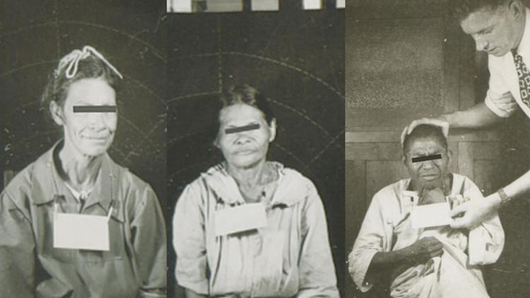"""""""Éticamente imposible"""": Así infectó EE.UU. a miles de guatemaltecos con sífilis hace 70 años"""