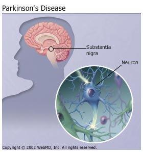 Advances in Parkinsons therapy writing an assignment