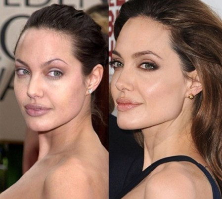 Angelina Surgery Before and After Pic
