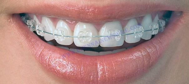 Dental braces Chennai
