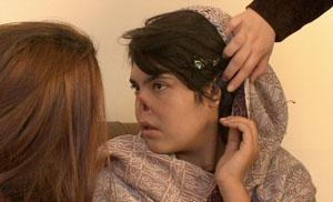 08. Afganistán Aisha, una mujer mutilada, denuncia el horror de las afganas bajo el régimen talibán