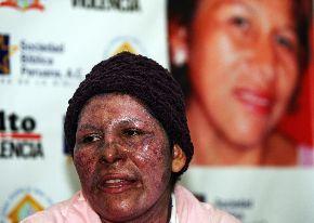 08. Perú: Elizabeth Alanya se convierte en símbolo de campaña contra violencia