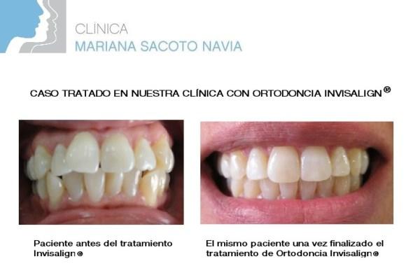 Clinica Mariana Sacoto Navia Ortodoncia Invisible Barcelona Expertos en Diseño de Sonrisas