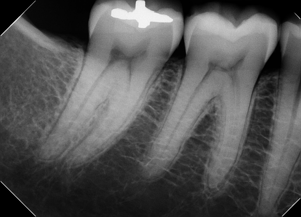 Clio Dental Sensor Sample X-Ray