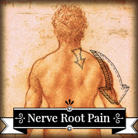 acupuncture for a bulging disc and nerve root pain