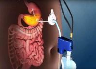 aparato que absorbe la comida de tu estomago