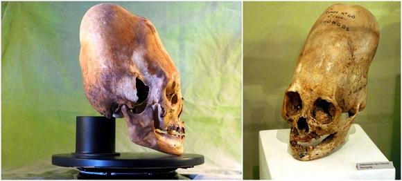 Crânios Alongados: Um mistério global
