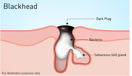 What is blackhead