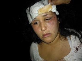 Sandra denunció que fue golpeada por dos agentes ante la mirada de los demás.