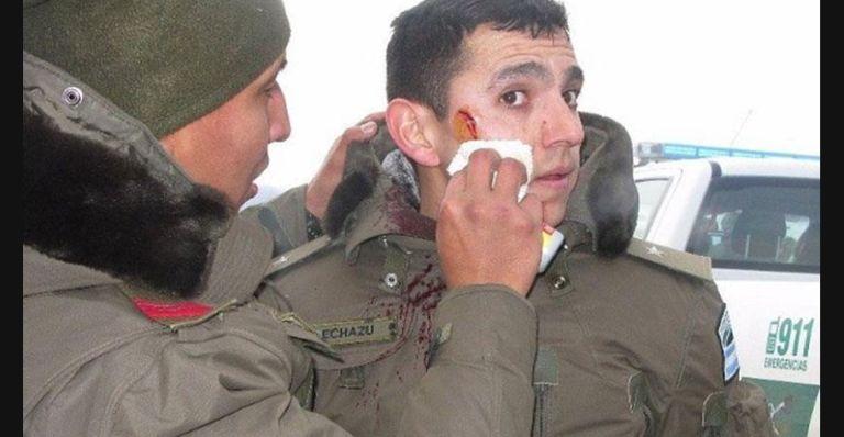 Las heridas de Echazú en la Pu lof.