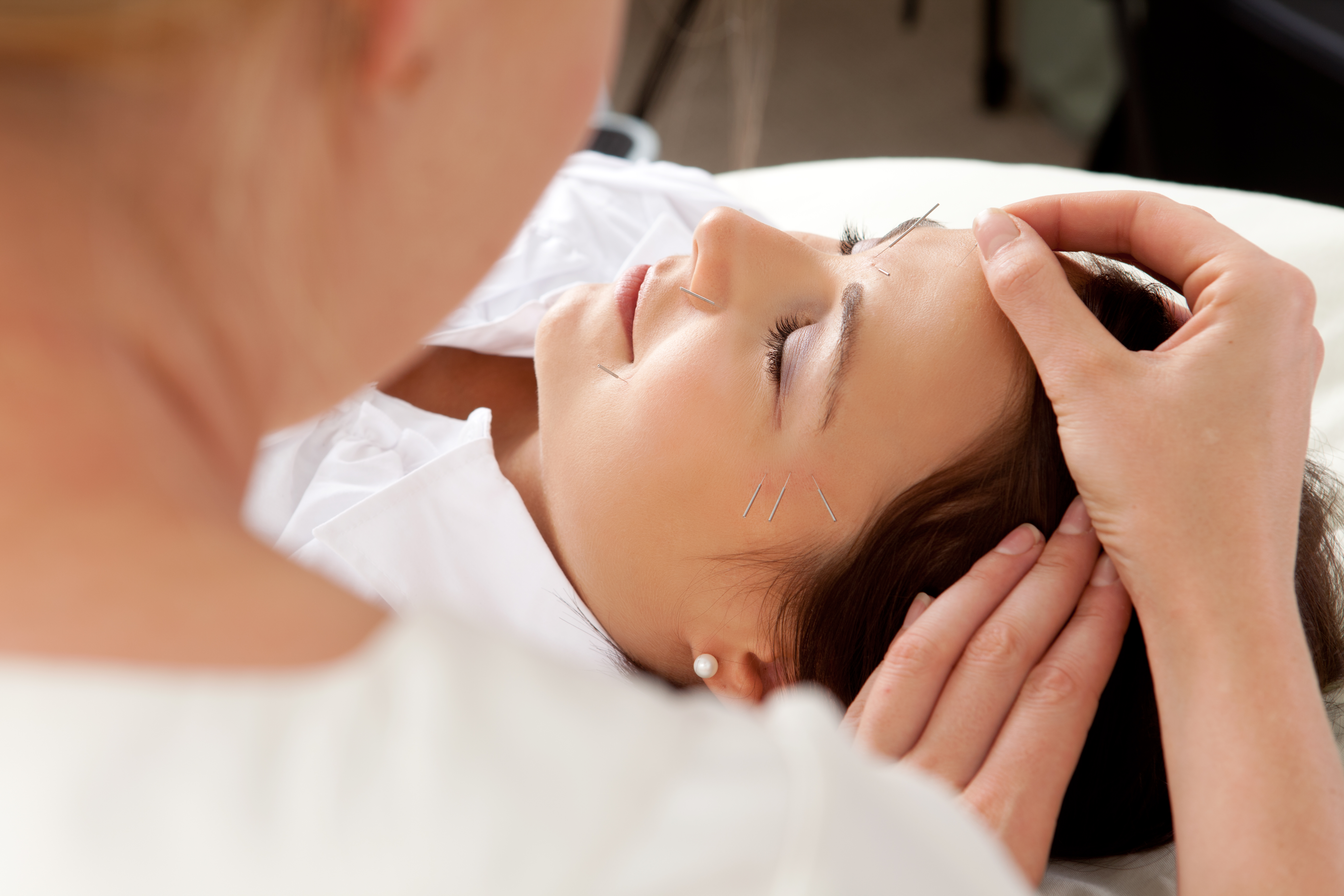 What are the effects of Acupuncture?