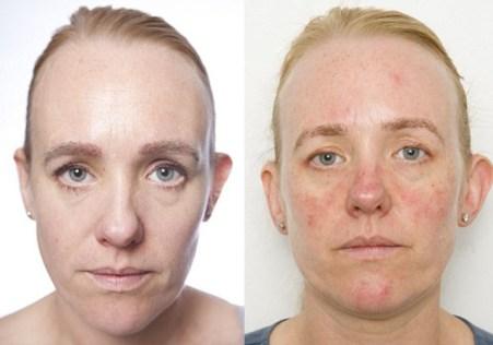 実験前<左>と実験後<右>の比較。肌にひび割れが起きて、全体的に顔が赤くなっています。