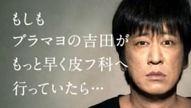 ブラマヨ吉田から学ぶ!ニキビに絶対してはいけないこと!