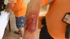 CESV Training with simulated injuries