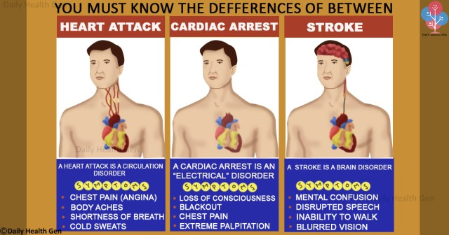 differences-between-a-heart-attack-cardiac-arrest-and-stroke-that-you-must-to-know