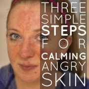 3 Simple Steps For Calming Angry Skin (1)