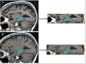 Dr. Fotuhi 12 Week Brain Fitness