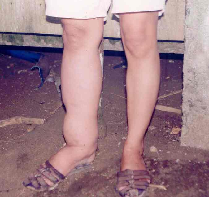 Filariasis immunization goes to Davao City hinterland