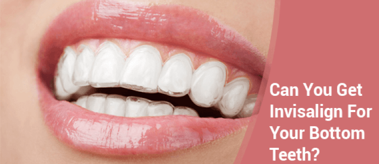 Is It Possible To Get Invisalign Only For The Bottom Row Of Teeth?