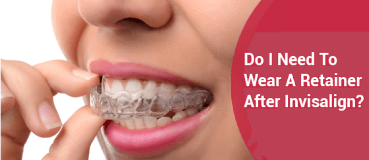 Do I Need To Wear A Retainer After Invisalign?