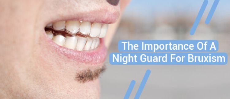 Do You Need To Wear Your Night Guard For Bruxism Every Night?