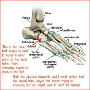 This is the bone that seems to want to travel to other parts of the world rather than remaining happily in place in my foot. DearKidLoveMom.com