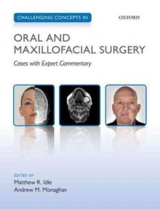 challenging-concepts-in-oral-and-maxillofacial-surgery