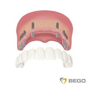 implanty z łącznikami - proteza i belka