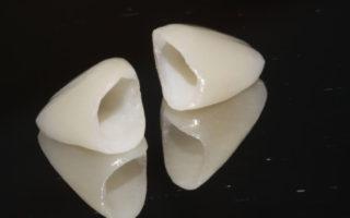 Dentalogy All Porcelain Crown - Mahkota Porselen 1