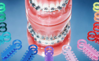 Dentalogy Dental Care - Elastomeric, Karet Kawat Gigi 3