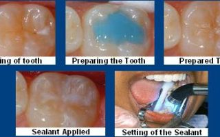 Dentalogy Dental Care - Fissure-Sealant 4