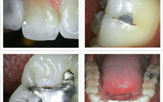 Dentalogy Dental Care - Kamera Macro 2