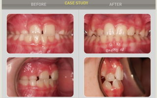 Dentalogy Dental Care - Kawat Gigi Anak, Trainer 2