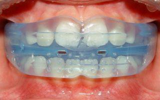 Dentalogy Dental Care - Kawat Gigi Anak, Trainer 3
