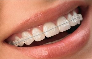 Promo Pemasangan Kawat Gigi
