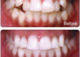Dentalogy Dental Care - Kawat Gigi, behel gigi 21