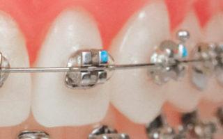 Dentalogy Dental Care - Kawat gigi logam 1