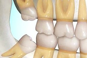 Dentalogy Dental Care - Operasi Gigi Bungsu, Wisdom Tooth 4